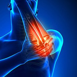 Image of elbow Pain Kevin Collins, MD Sports Medicine - Orthopedic Surgeon