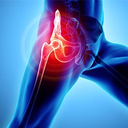 Image-of-Hip-Pain--Kevin-Collins,-MD-Sports-Medicine---Orthopedic-Surgeon