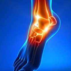 Image-of-ankle-pain-Kevin-Collins,-MD-Sports-Medicine---Orthopedic-Surgeon