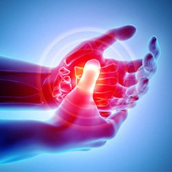 Image of hand Pain Kevin Collins, MD Sports Medicine - Orthopedic Surgeon