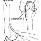 abnormal bone growth of VEO